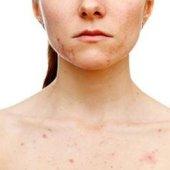 Blemished Skin